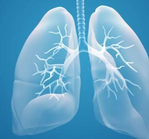 Nicht-kleinzelliger Lungenkrebs: Prognose verbessern – Überleben verlängern