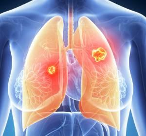 Studiendaten bestätigen Fortschritte mit Atezolizumab und Alectinib beim fortgeschrittenen Lungenkarzinom
