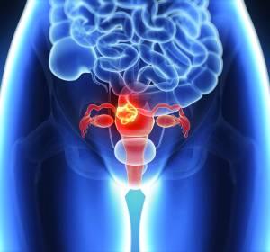 Erstlinientherapie beim fortgeschrittenen Ovarialkarzinom: Paradigmenwechsel durch PARP-Inhibitoren
