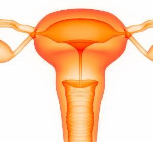 Fortgeschrittenes Ovarialkarzinom: Verlängerung des PFS unter Olaparib