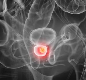 BRCA1/2- oder ATM-Mutation mit metastasiertem kastrationsresistenten Prostatakarzinom: Verlängerung des PFS unter Olaparib