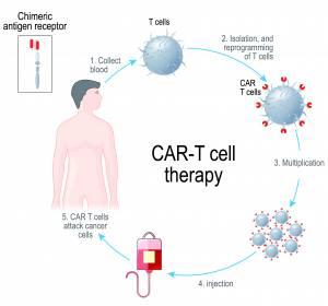 Patientenselektion für die CAR-T-Zell-Therapie