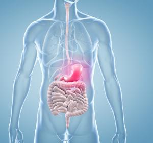 Metastasiertes Magenkarzinom: Neue Drittlinienoption mit belegtem Überlebensvorteil