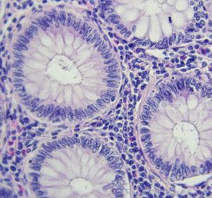 Kolonkarzinom: Mutiertes Gen identifiziert