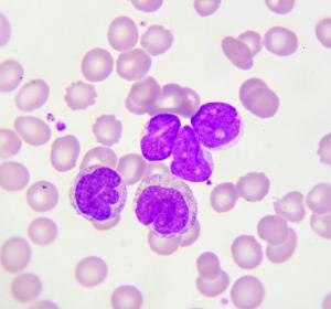 CLL: Zielgerichtete Kombinationsregime verdrängen Chemotherapie