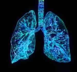 Lungenkrebs-Operationen: Bessere Überlebenschancen bei höheren Fallzahlen