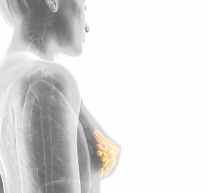 Erste vielversprechende Ergebnisse zu Ladiratuzumab Vedotin + Pembrolizumab beim lokal fortgeschrittenen/metastasierten TNBC
