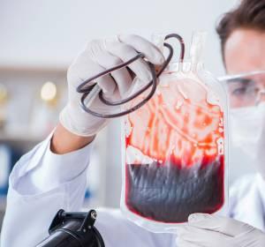 Transfusionspflichtige Myelodysplastische Syndrome: Ansprechen auf Eisenchelation geht im klinischen Alltag mit Überlebensverbesserung einher