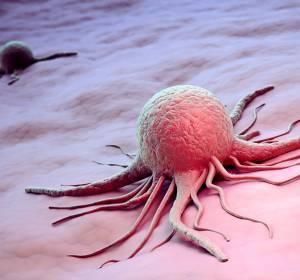 Metaanalyse: Residuelle Tumorlastmessung ermöglicht Aussagen zum Outcome nach neoadjuvanter Brustkrebstherapie