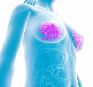 Luminal-B-Hochrisiko-Brustkrebs: Neoadjuvant Ribociclib + Letrozol erreicht ähnliche Ansprechraten wie Chemotherapie