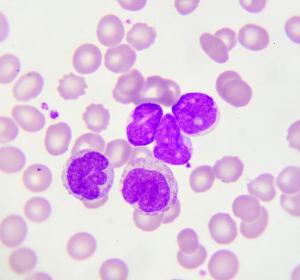 CLL: Verlängertes PFS bei zuvor unbehandelten Patienten unter Acalabrutinib