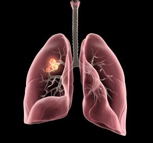 Metastasiertes NSCLC: CHMP-Empfehlung für Kombinationstherapie Erlotinib + Ramucirumab