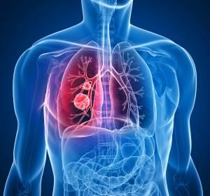 NSCLC: Brigatinib im 2-Jahres-Follow-up gegenüber Crizotinib überlegen