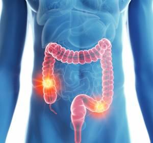 Darmkrebs: Bessere Überlebenschancen in Krankenhäusern mit großen Fallzahlen