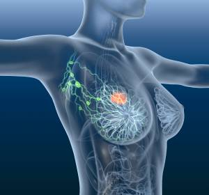 Brustkrebs%3A+191+Risiko-Gene+identifiziert