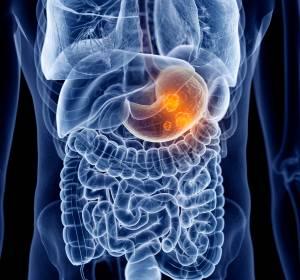Fortgeschrittenes Magenkarzinom: Fortschritte durch Sequenztherapie