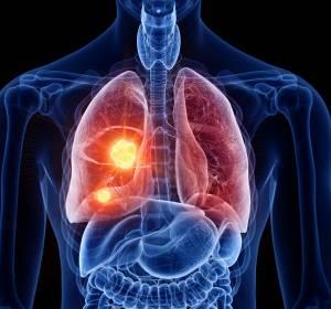 Krebsimmmuntherapie beim fortgeschrittenen NSCLC: Wirksamkeit und Sicherheit nur mit dem Original-Zytostatikum belegt