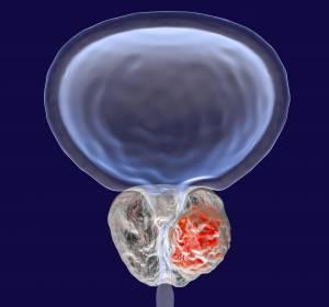 Prostatakarzinom: PSMA-PET wird Kassenleistung