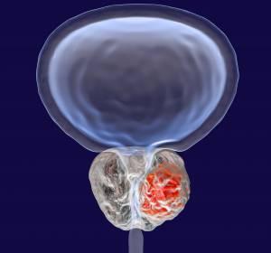 ASCO-GU-Kongress: Bayer präsentiert neue Daten aus Onkologie-Portfolio
