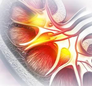 RCC: Höhere Ansprechraten unter Kombinationstherapie Nivolumab +  Ipilimumab