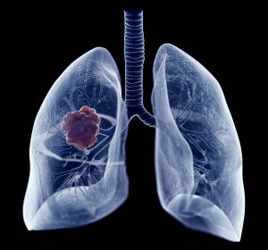 Pneumo-Onkologie: Studiendaten zu Atezolizumab und Alectinib beim fortgeschrittenen Lungenkarzinom