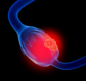 Platinsensitives Ovarialkarzinom: Olaparib-Erhaltungstherapie unabhängig vom BRCA-Mutationsstatus
