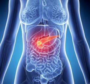 Pankreaskarzinom: Behandlungsoptionen mit Olaparib