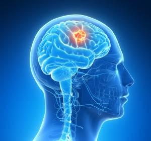 Neurofibromatose Typ 2: Antikörper als Therapiealternative bei Erwachsenen