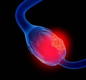 Ovarialkarzinom: Antragstellung auf Zulassung für Niraparib in der Erstlinien-Erhaltungstherapie akzeptiert