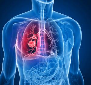 NSCLC: Molekular stratifizierte Therapie