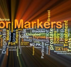 Tumormutationslast als Biomarker: Leistung von 6 Gentests überprüft