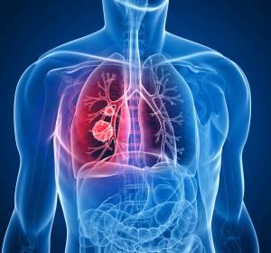 NSCLC und SCLC: Osimertinib und Durvalumab erweitern Therapiespektrum und verbessern die Prognose