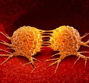 Registerdaten zu CAR-T-Zell-Therapien sind mit Ergebnissen der Zulassungsstudien vergleichbar