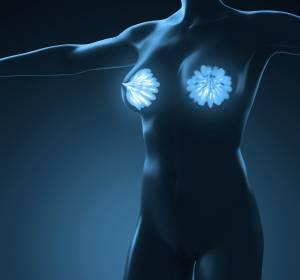 Mammakarzinom: Biomarker-basierte Testung zur Entscheidung für oder gegen Chemotherapie