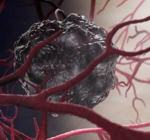 EGFR-mutiertes mNSCLC: Ramucirumab + Erlotinib neue Therapieoption in der Erstlinie