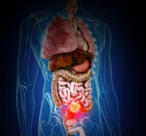 mCRC: Zweitlinientherapie mit Ramucirumab nach Bevacizumab wirksam