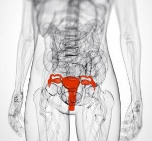 VEGF-Hemmung bei fortgeschrittenem Ovarialkarzinom