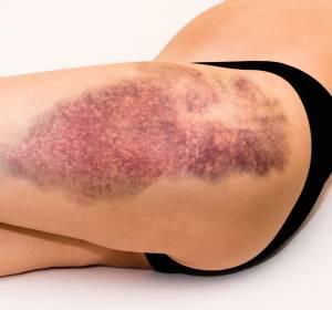 ITP: Weniger Blutungsereignisse unter Romiplostim