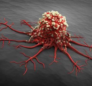 COVID-19: Erste Daten deuten auf hohe Vulnerabilität von Krebspatienten hin