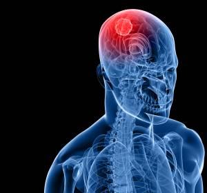 Leitlinie zu gutartigen Tumoren der Hirnanhangdrüse: Standards für Diagnostik, Therapie und Nachsorge vermeiden Überversorgung