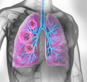 mNSCLC: US- und EU-Zulassungsanträge für Erstlinientherapie Nivolumab + Ipilimumab in Kombination mit 2 Zyklen Chemotherapie angenommen