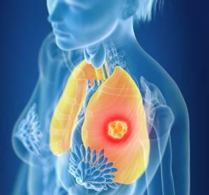 NSCLC%3A+Chemo-%2FImmuntherapie+nur+mit+den+gepr%C3%BCften+Pr%C3%A4paraten+sicher+und+wirksam
