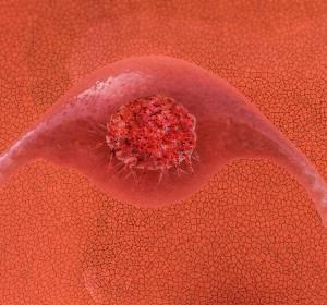 Zervixkarzinom: Neue Empfehlung der ESMO zur Behandlung in frühen Stadien