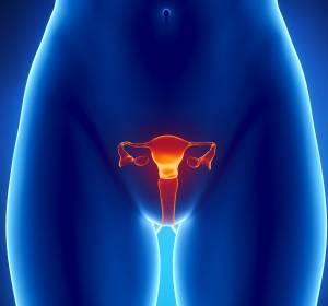 Aktualisierte S3-Leitlinie 2020: Diagnostik, Therapie und Nachsorge maligner Ovarialtumoren