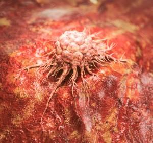 """COVID-19-Pandemie: Warnung vor einer """"Bugwelle"""" zu spät diagnostizierter Krebsfälle"""
