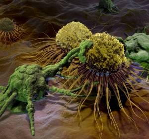 Metastasiertes Urothelkarzinom: neue Leitlinienempfehlungen