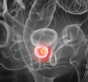 Prostatakarzinom%3A+KI-basierte+Diagnostik+im+MRT