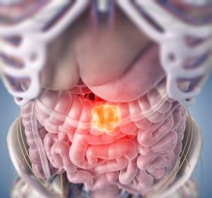 Darmkrebsvorsorge: Zi-Studie zur Inanspruchnahme veröffentlicht