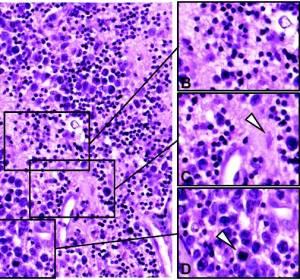 Primäre ZNS-Lymphome: Wachstumsstrategien der Tumorzellen