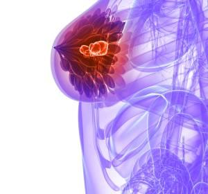 Patienten-Reported Outcome: Ribociclib + Fulvestrant als Erst- und Zweitlinientherapie bei fortgeschrittenem Brustkrebs